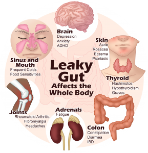 Leaky gut affects the whole body - Paula Owens, MS Holistic Nutritionist and Functional Health Practitioner